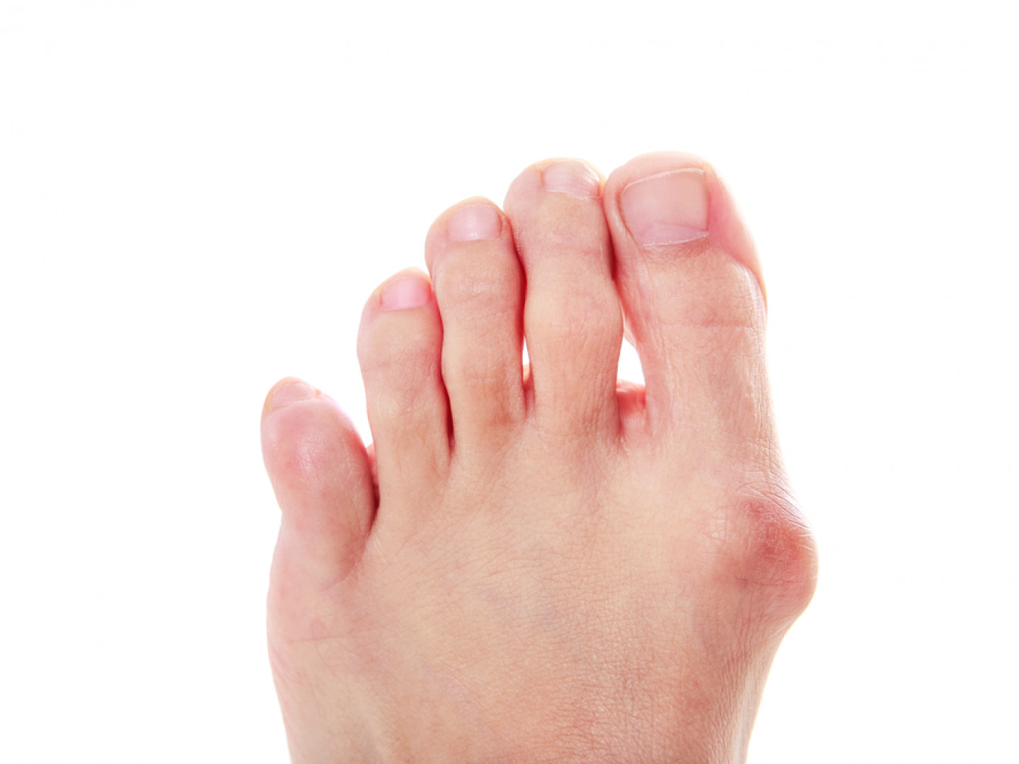 Choose a preferred local foot surgeon